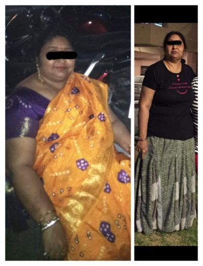 Bariatric Surgery Before And After Photos