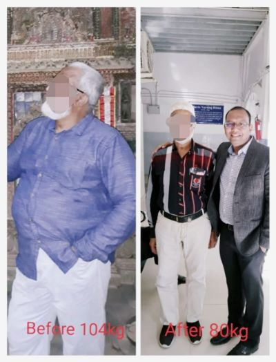 Bariatric Surgery Results Pictures